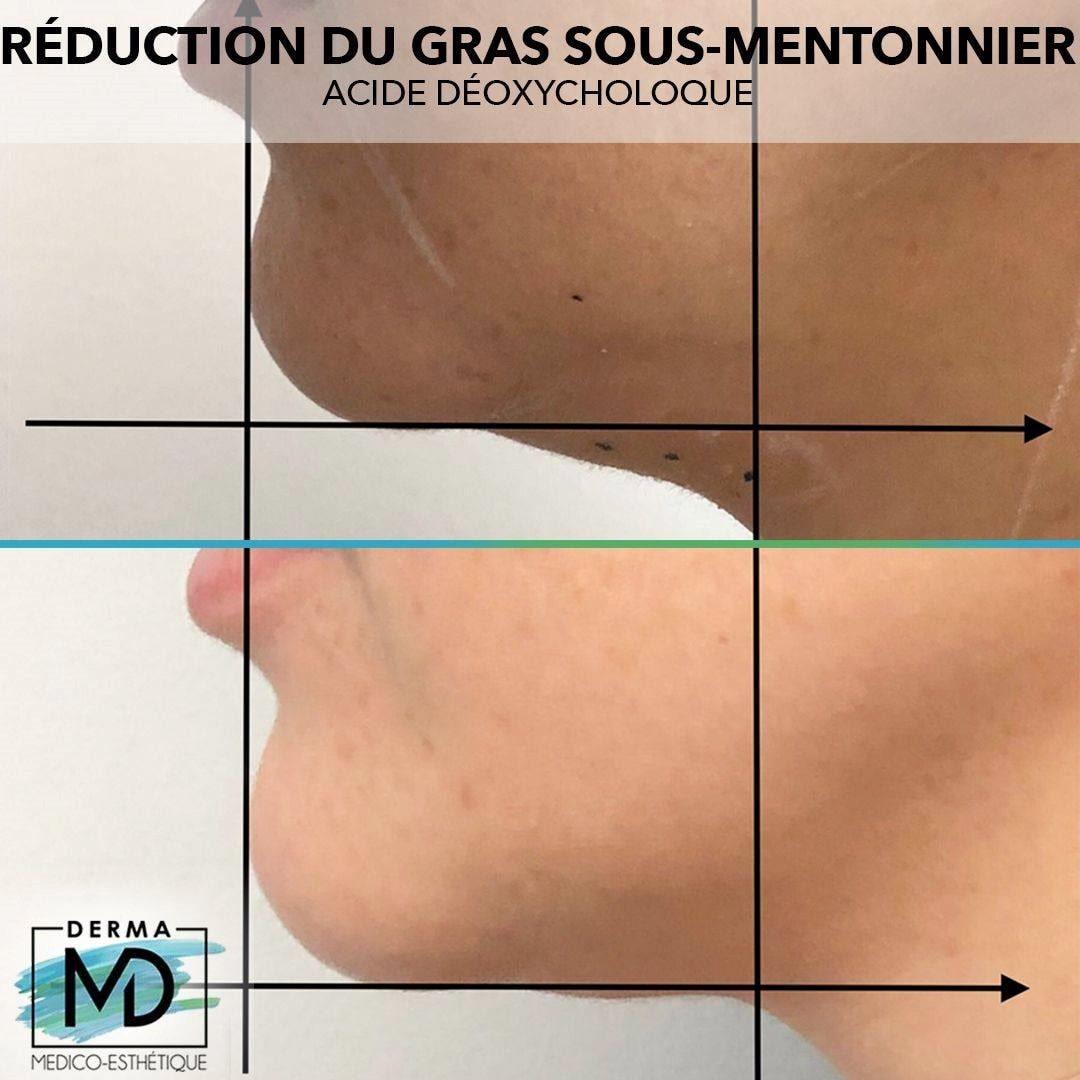 reduction-gras-sous-mentonnier-derma-md-2-min